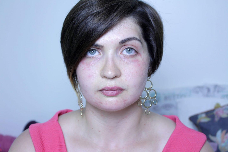 spots face