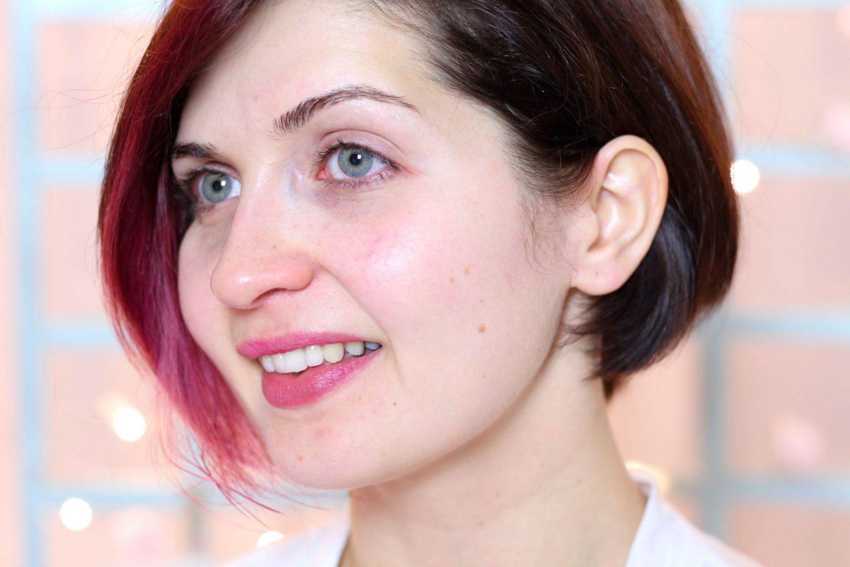 peri oral dermatitis